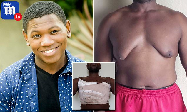 Gynecomastia Nutrition 101: Foods to Eat/Avoid to Get Rid of Man Boobs